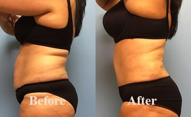 Abdominoplasty Tummy Tuck Indore Before After
