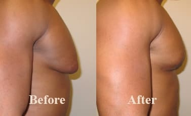 Male Breast Liposuction Before After