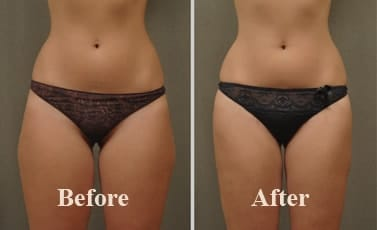 Thighs Liposuction Before After